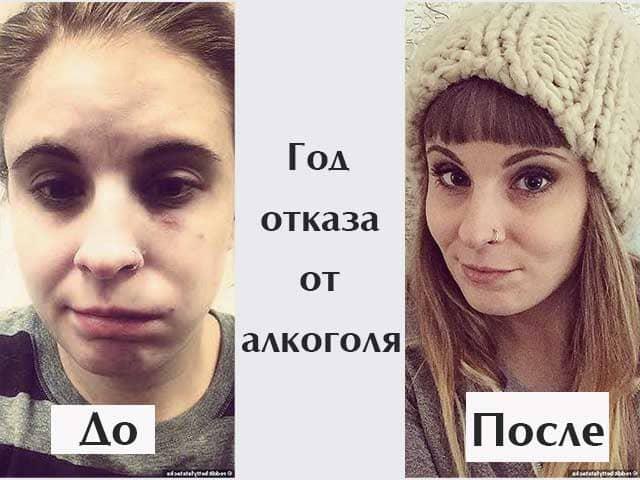god-bez-alkogolya-vneshniy-vid-zhenshchiny
